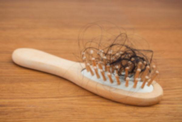 乾燥から身を守るため過剰に皮脂が出て、 頭皮環境が悪化すると髪が抜けてしまうんです。